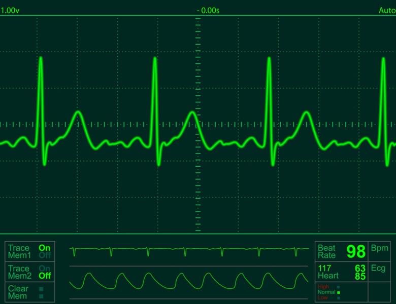 ecg-monitoring